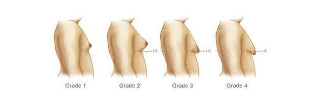 gynecomastia signs and symptoms