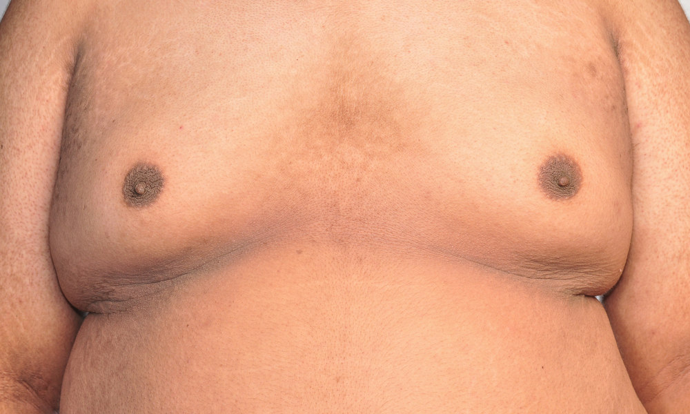 gynecomastia symptoms and signs